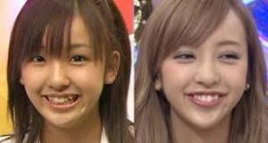 日本の女性、どの位整形してると思いますか?